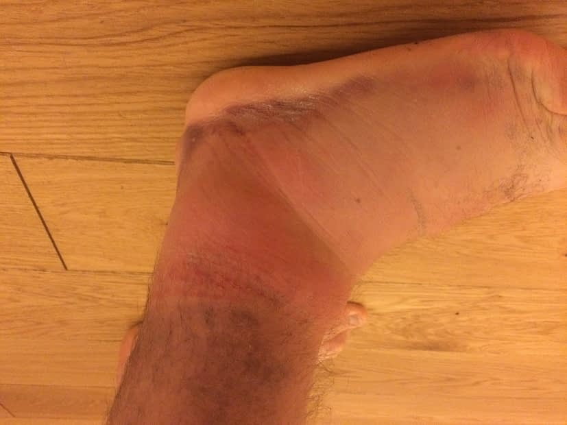 Acute ankle sprain and what to do about it.